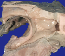 Hippocampal Dissection